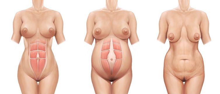 diastasis abdominal detalle